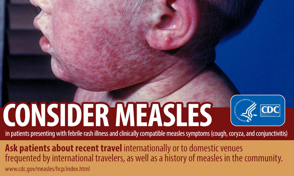 CDC Consider Measles